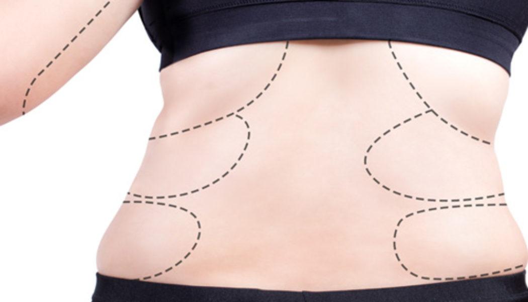 Obesidade Sarcopenica-3