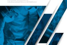 SBCBM lança Diretrizes sobre a Colelitíase por meio de transmissão para todo o Brasil