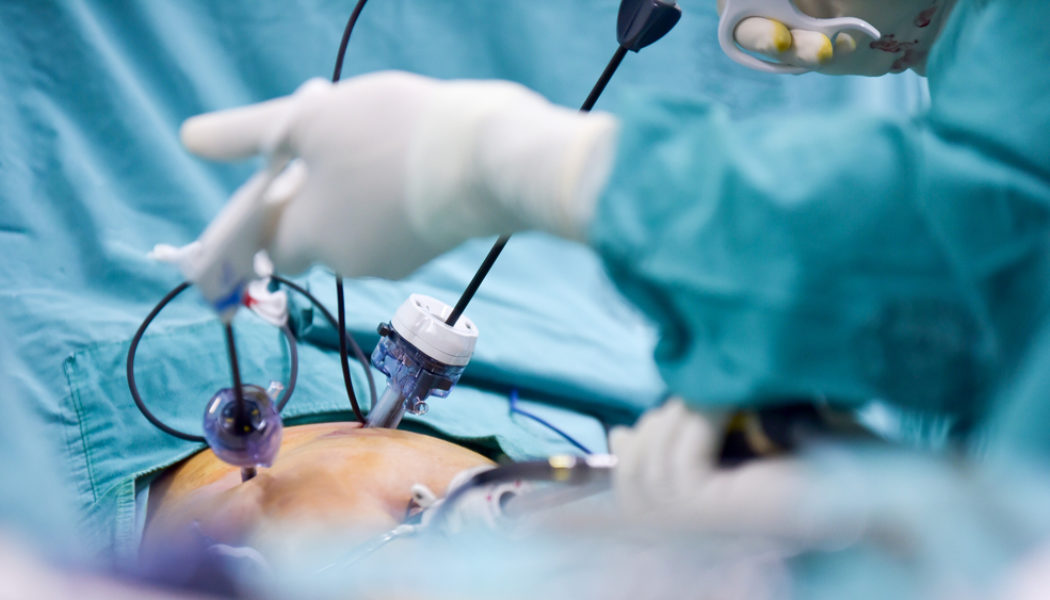 Você conhece a cirurgia bariátrica por videolaparoscopia?