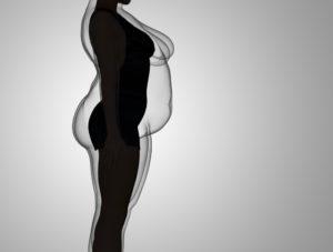 ARTIGO: Obesidade, cirurgia bariátrica e desinformação, um risco a ser superado